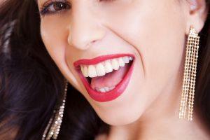 resultados implantes dentales valencia 300x200 ¿Qué son las fundas dentales y para qué sirven?