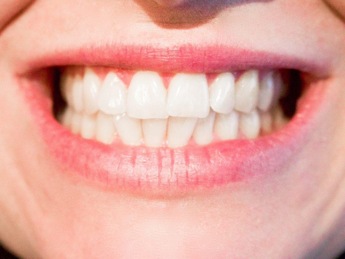 ¿Es tarde para ponerse ortodoncia siendo adulto?