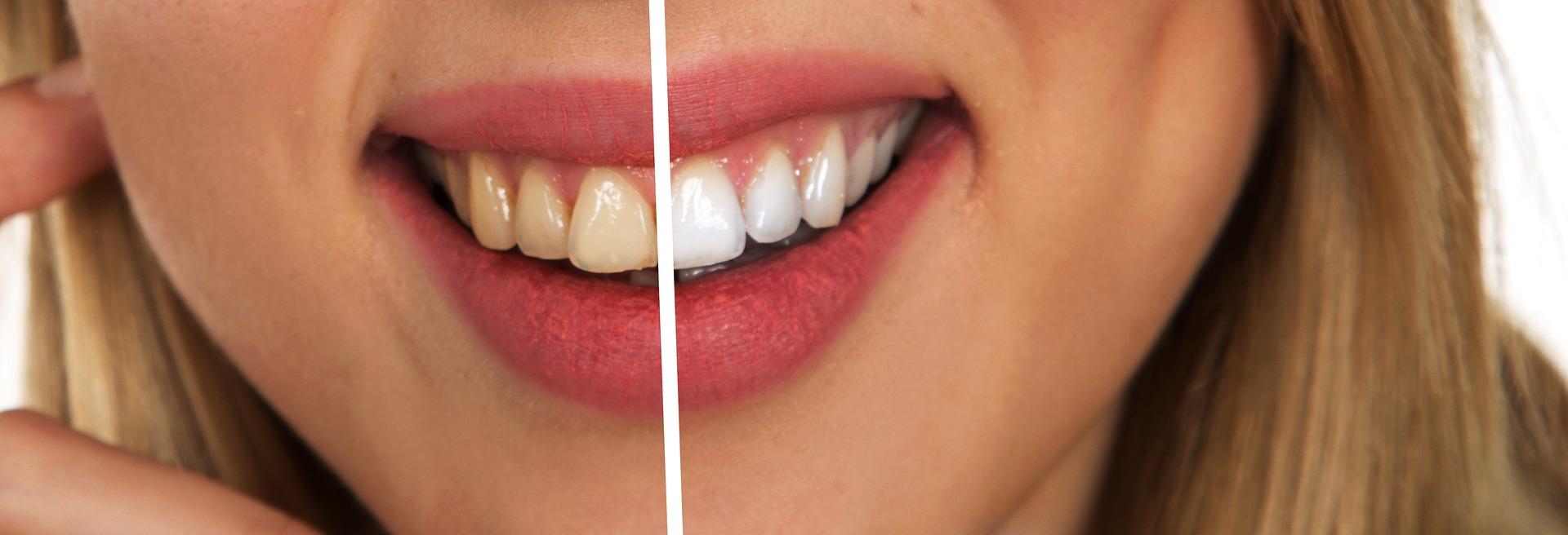 blanqueamiento antes despues ¿Estás pensando en un blanqueamiento dental?