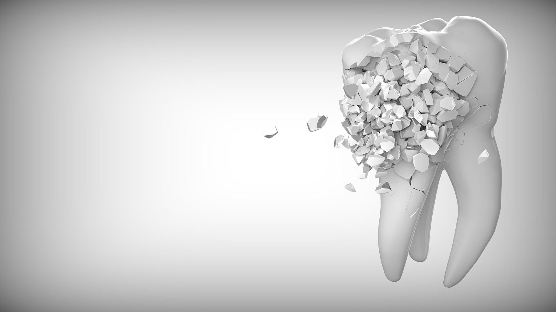 destruccion dental De la gingivitis a la periodontitis. Lo que deberías saber para evitarla